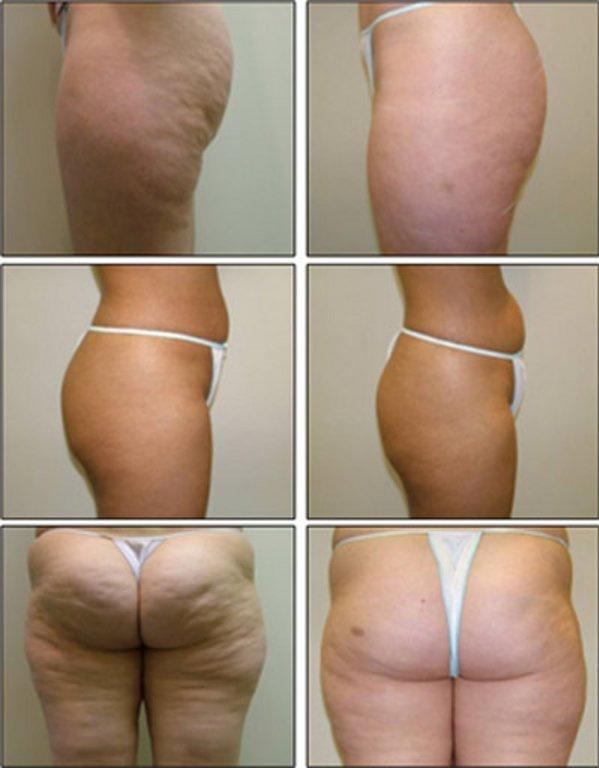 прессотерапия похудение отзывы